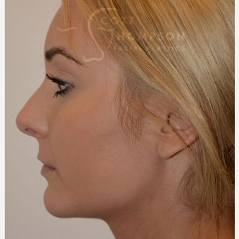 18-24 year old woman treated with Cheek Augmentation