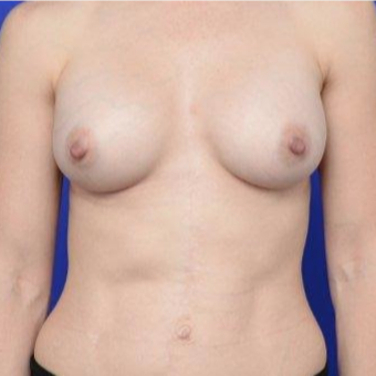 33 year old woman treated with Breast Augmentation after 3670142