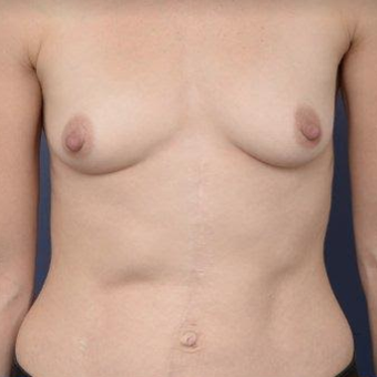 33 year old woman treated with Breast Augmentation before 3670142