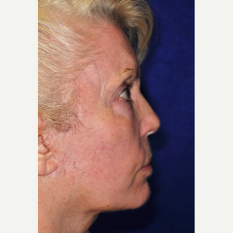 55-64 year old woman treated with Facelift after 3848963