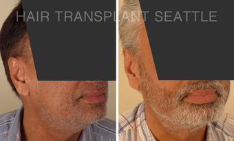 45-54 year old man treated with Hair Transplant after 2989967
