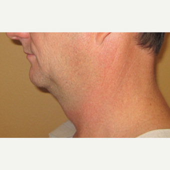 45-54 year old man treated with Chin Liposuction before 2772327