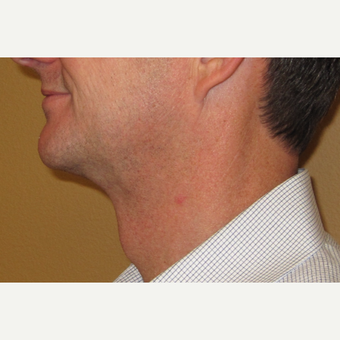 45-54 year old man treated with Chin Liposuction after 2772327