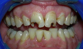 Porcelain Crowns - Smile Makeover before 896616