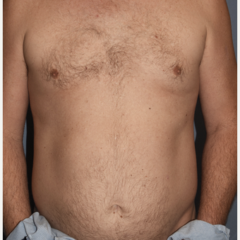 45-54 year old man treated with Liposculpture for Abdominal Etching before 3407855