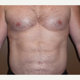 45-54 year old man treated with Liposculpture for Abdominal Etching after 3407855