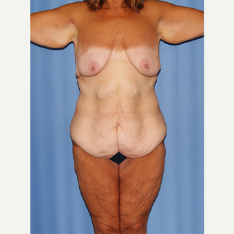 35-44 year old woman treated with Body Lift before 2748773