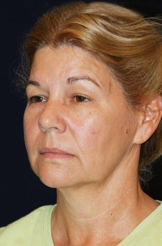 55-64 year old woman treated for SMAS Facelift before 1534792