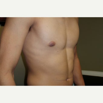 18-24 year old man treated with Male Breast Reduction 1591637
