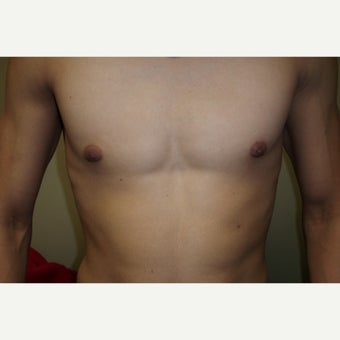 18-24 year old man treated with Male Breast Reduction after 1591637