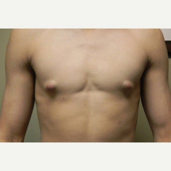 18-24 year old man treated with Male Breast Reduction before 1591637
