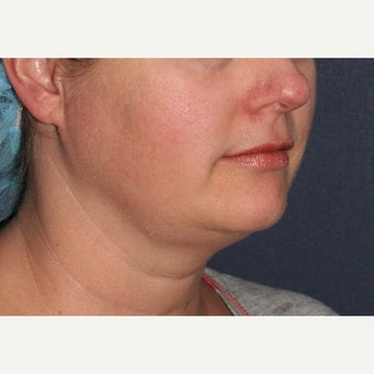 35-44 year old woman treated with Ultherapy before 1602490