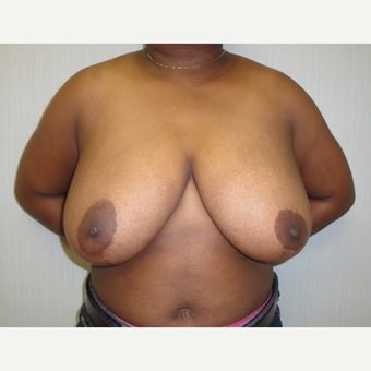 25-34 year old woman treated with Breast Reduction before 3823236