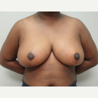 25-34 year old woman treated with Breast Reduction after 3823236