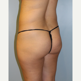 25-34 year old woman treated with Brazilian Butt Lift before 3768758