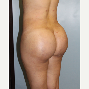 25-34 year old woman treated with Brazilian Butt Lift after 3768758