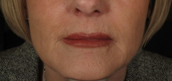 55-64 year old woman treated with Juvederm