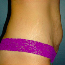 35 year old woman treated with Tummy Tuck before 3578258