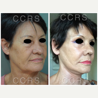 Complete facial rejuvenation of a 61 year old female before 3031245