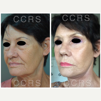 Complete facial rejuvenation of a 61 year old female after 3031245
