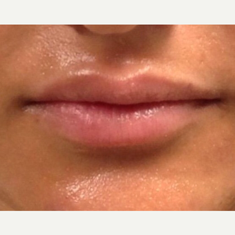 18-24 year old woman treated with Lip Augmentation before 2983825