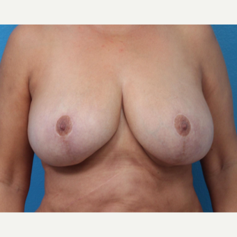 55-64 year old woman treated with Breast Implant Removal after 3266333