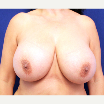 55-64 year old woman treated with Breast Implant Removal before 3266333