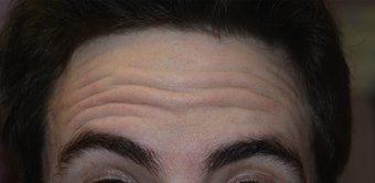 32 Year Old Male Treated For Forehead Lines before 1373421