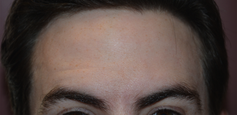 32 Year Old Male Treated For Forehead Lines after 1373421