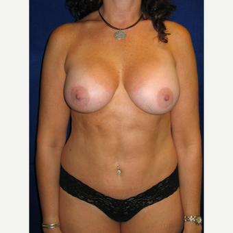 35-44 year old woman treated with Breast Implants after 3727189