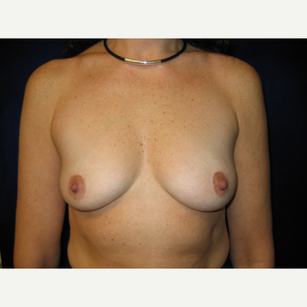 35-44 year old woman treated with Breast Implants before 3727189