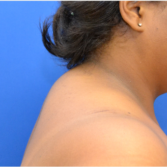 Buffalo Hump Reduction with Liposuction before 3804395
