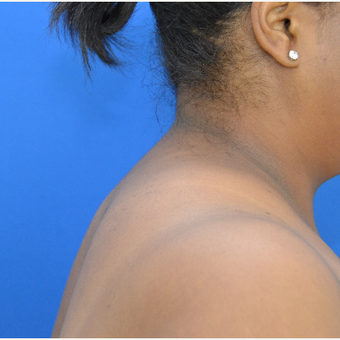 Buffalo Hump Reduction with Liposuction after 3804395