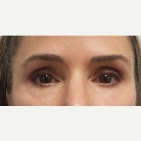 45-54 year old woman treated with Restylane around the eye and tear trough