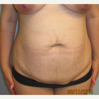25-34 year old woman treated with Mini Tummy Tuck before 3583988