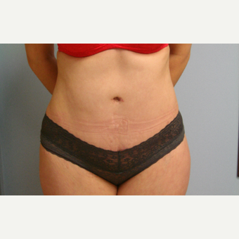 25-34 year old woman treated with Mini Tummy Tuck after 3583988