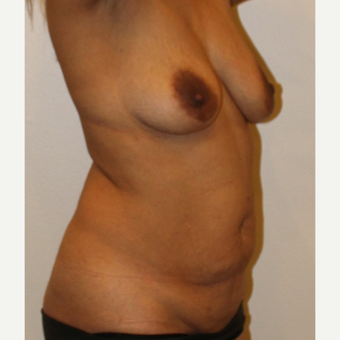 45-54 year old woman treated with Mommy Makeover before 3372612