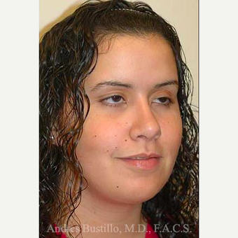 16 year old woman treated with Rhinoplasty after 3462309