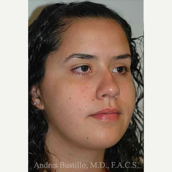 16 year old woman treated with Rhinoplasty before 3462309