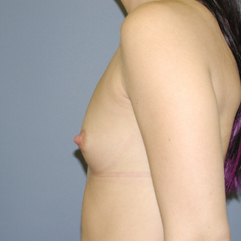 26 year old woman treated with Breast Augmentation before 3042500