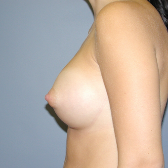 26 year old woman treated with Breast Augmentation after 3042500