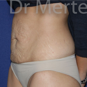 Tummy Tuck before 3599598