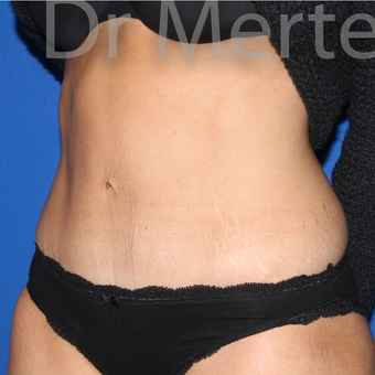 Tummy Tuck after 3599598