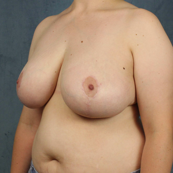 25-34 year old woman treated with medial pedicle Breast Reduction after 2752930