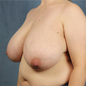25-34 year old woman treated with medial pedicle Breast Reduction before 2752930
