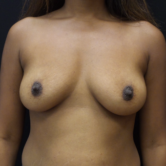 Breast Augmentation before 3012481