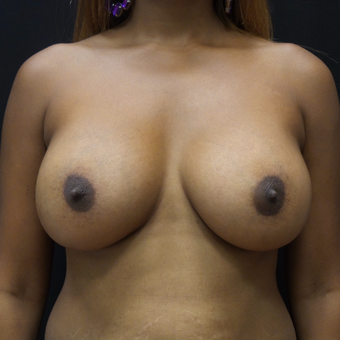 Breast Augmentation after 3012481