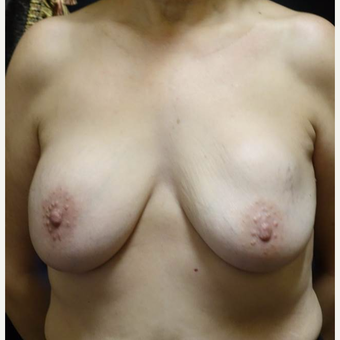 55-64 year old woman treated with Breast Lift with Implants before 3014455