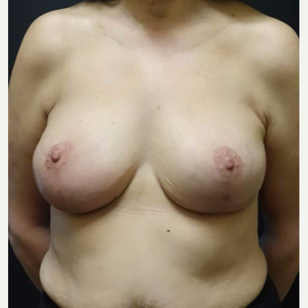 55-64 year old woman treated with Breast Lift with Implants after 3014455