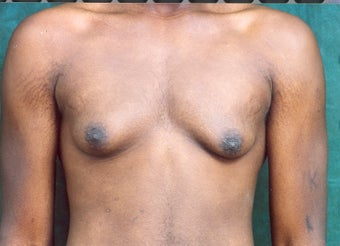 Male Breast Reduction before 684663